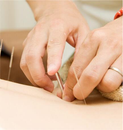 身体の不調も鍼灸治療で対応可能です